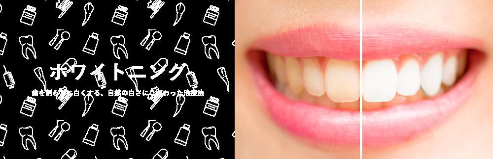 ホワイトニング 歯を削らずに白くする、自然の白さにこだわった治療法